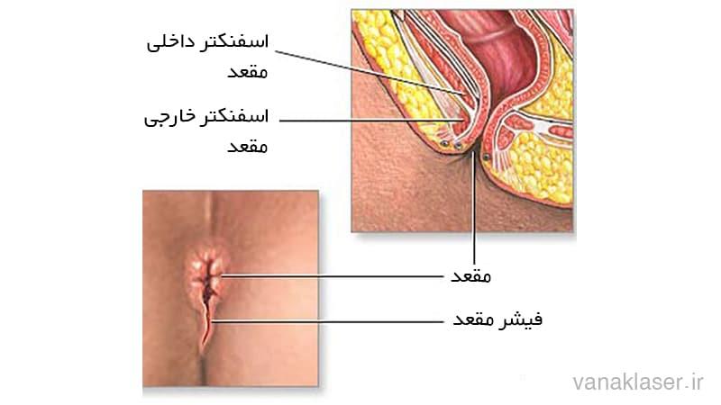 بیماری های مقعد وانواع آن مانند بواسیر،شقاق،فیستول،کیست مویی و زگیل مقعدی