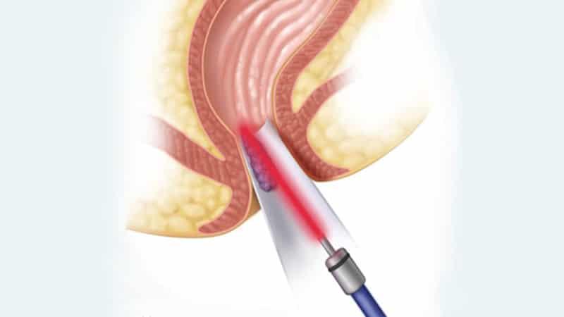 درمان بواسیر(هموروئید) بدون جراحی،استفاده از لیزر و مزایای آن،روش های خانگی