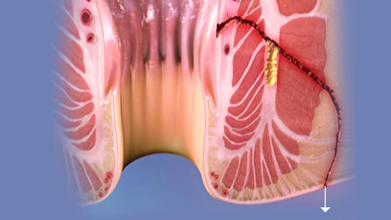 فیستول چیست ؟ علائم و نشانه های فیستول مقعدی ، دلایل ایجاد ، روش های پیشگیری