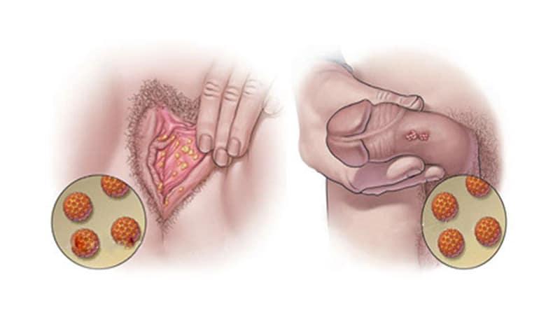 زگیل تناسلی چیست،انواع زگیل تناسلی در مردان و زنان،علائم،تشخیص و درمان