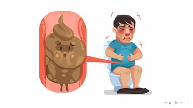 یبوست چیست و چرا به آن مبتلا می شویم؟علائم،عوارض و روش های درمان
