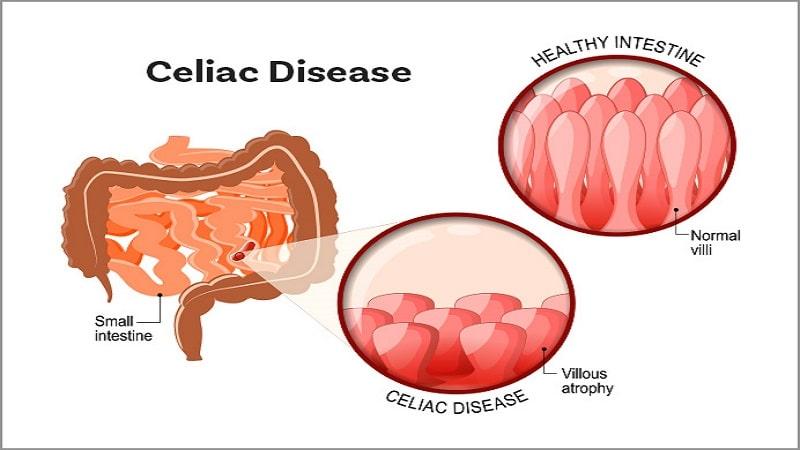سلیاک چیست و چگونه تشخیص داده می شود،علت،علائم و تست سرولوژِی سلیاک