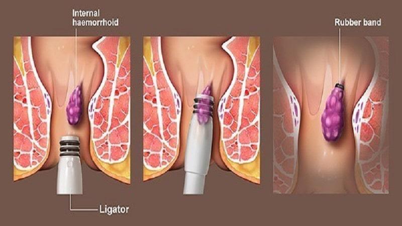 درمان بواسیر یا هموروئید با رابربند،مراحل انجام،مزایا و عوارض این روش