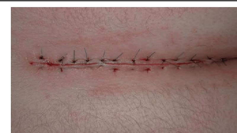 مراقبت بعد از عمل بسته کیست مویی