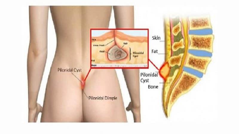 اقدامات و مراقبت های لازم بعد از عمل کیست مویی به روش باز و بسته