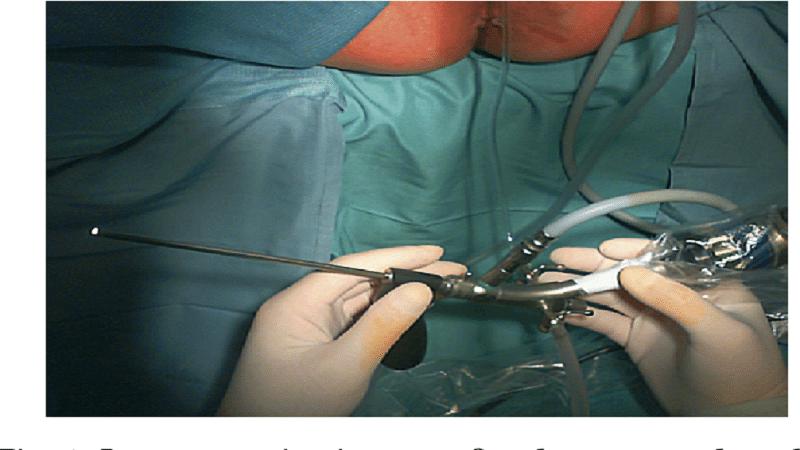 درمان فیستول مقعدی به روش vaaft و مزایا و معایب این روش 2