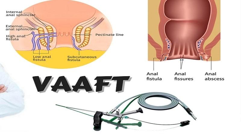 درمان فیستول مقعدی به روش vaaft و مزایا و معایب این روش