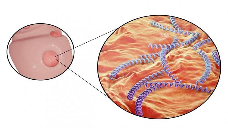 سیفلیس و تاثیرات آن بر بدن،روشهای درمان و پیشگیری از سیفلیس