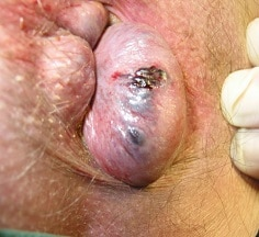 [عکس: Thrombosed-external-hemorrhoid..jpg]