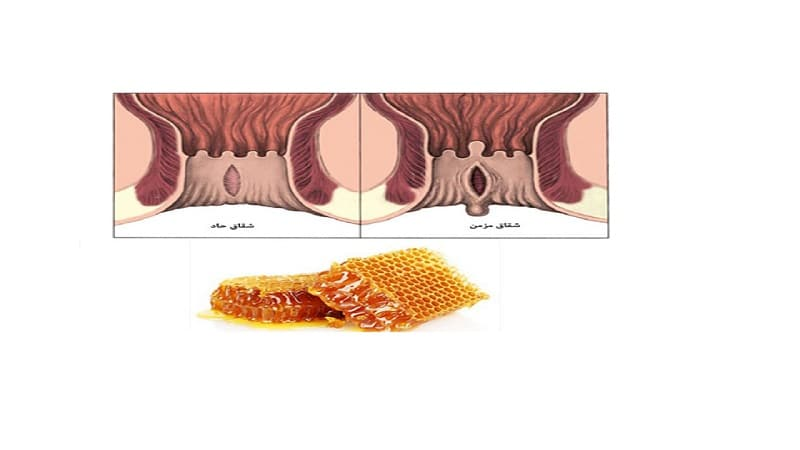 درمان شقاق مقعدی با عسل و نحوه انجام آن