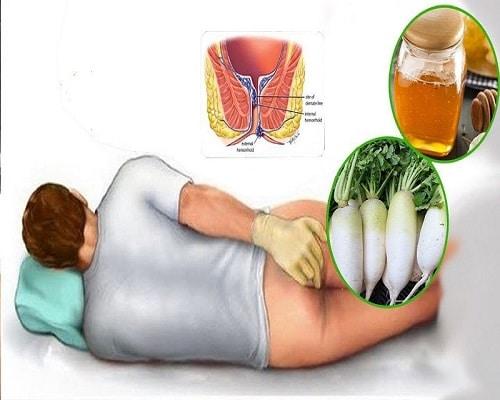 درمان خانگی بواسیر