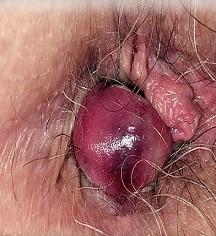 [تصویر:  2-thrombosed-haemorrhoid-dr-p-marazzisci...ibrary.jpg]