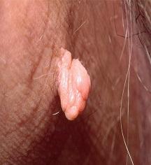 [تصویر:  skin-tag-causes-and-treatments-722x406-1.jpg]