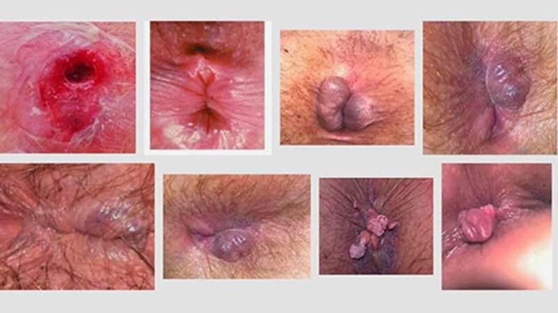 بواسیر یا هموروئید چیست ؟ علائم و نشانه ها، دلایل ایجاد، روش های پیشگیری